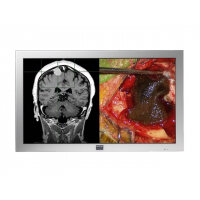 "Barco MD-4221 - LCD monitor - colour - 42"" - 1920 x 1080 Full HD (1080p) - IPS - 500 cd/m² - 1400:1 - 5 ms - DVI-I, VGA, HD-SDI"